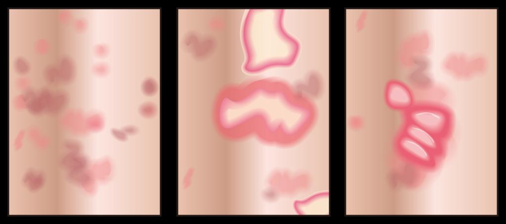 褥瘡(じゅくそう)、床ずれ(とこずれ)の詳細イメージ